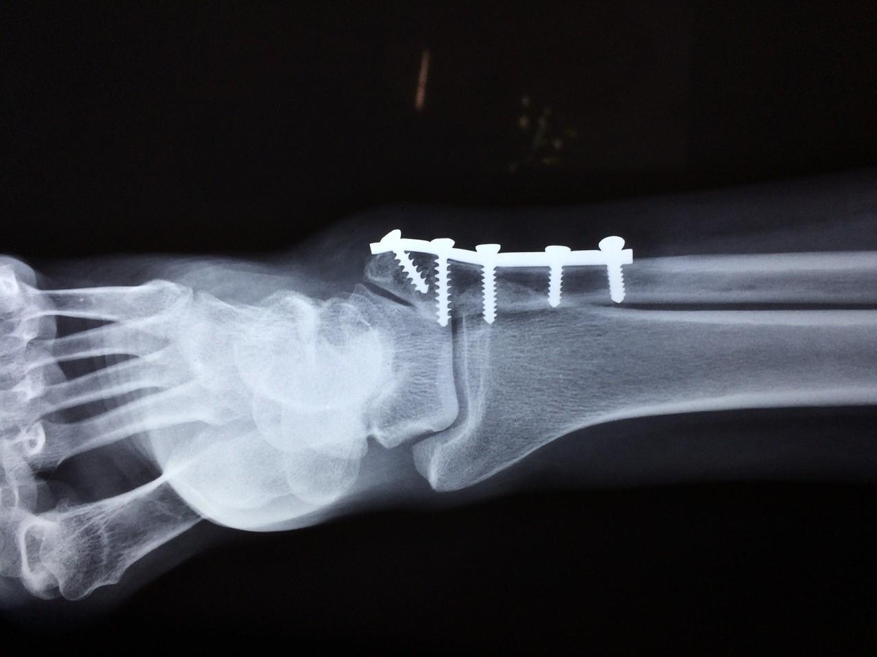 Le médecin Thomas Le Carrou parle de la chirurgie orthopédique